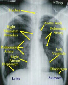 X-Quang viêm phổi
